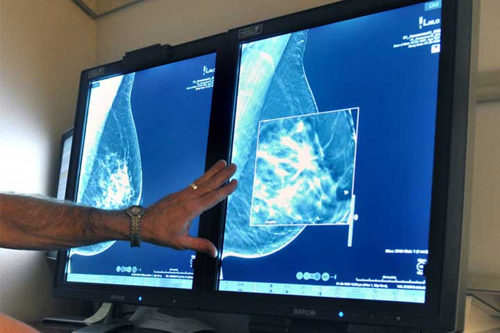 An imaging test to see tissue within breast